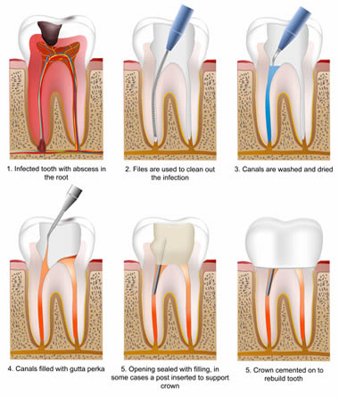 Root  canal treatment (also called Endodontic treatment)